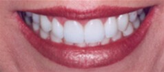 Womans's smile with brilliant white teeth