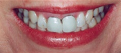 Closeup of teeth with dark stains at gums