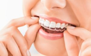 Woman taking out Invisalign aligners.