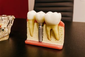 Model used for dental implants